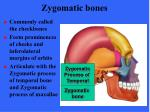 zygomatic bones