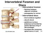 intervertebral foramen and discs