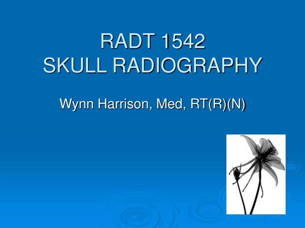 radt 1542 skull radiography l.