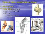 types of joints classification by shape18