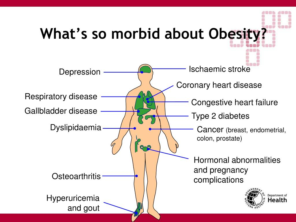 What's so morbid about Obesity?