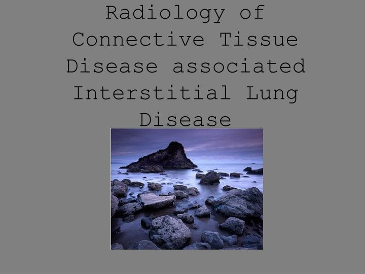 radiology of connective tissue disease associated interstitial lung disease n.