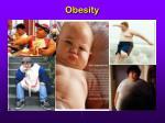 obesity21