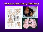 thiamine deficiency beriberi30
