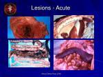 lesions acute