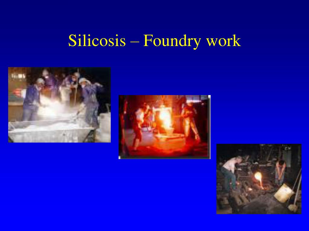 Silicosis – Foundry work