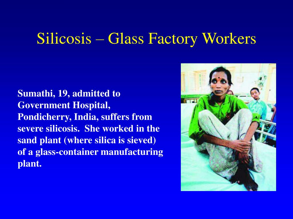 Silicosis – Glass Factory Workers