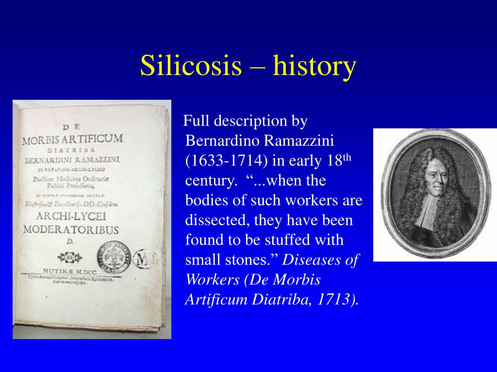 Silicosis – history