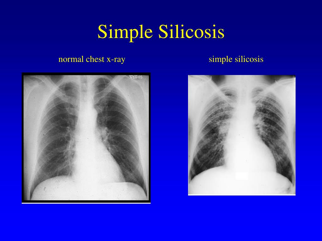 Simple Silicosis