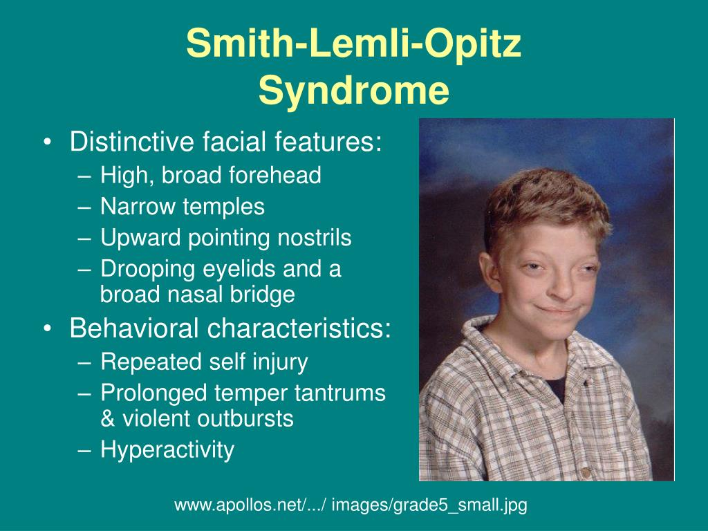 Smith Lemli Opitz Syndrome Slos