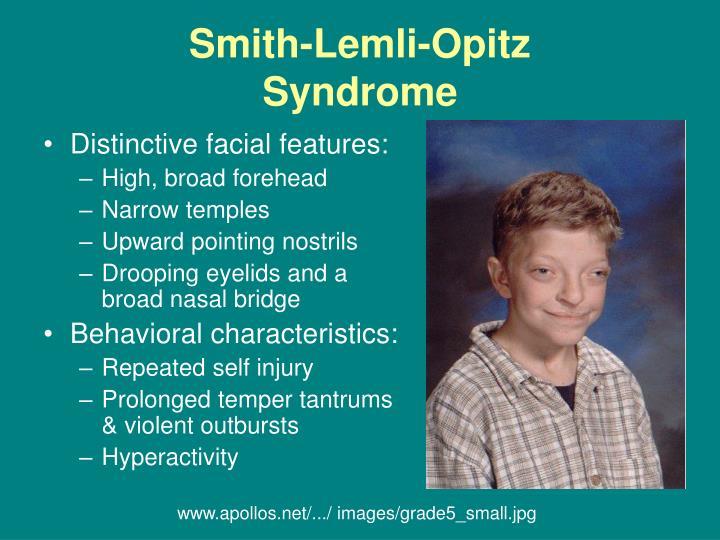 Smith Lemli Opitz Syndrome Slos