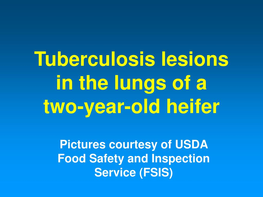 Tuberculosis lesions