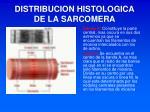 distribucion histologica de la sarcomera1