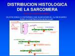 distribucion histologica de la sarcomera2