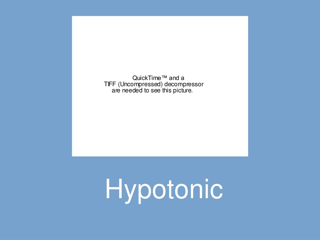 Hypotonic