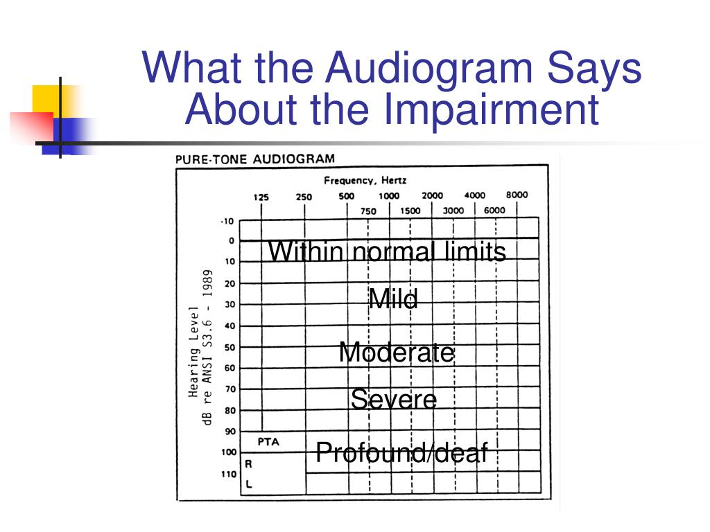 What the Audiogram Says About the Impairment