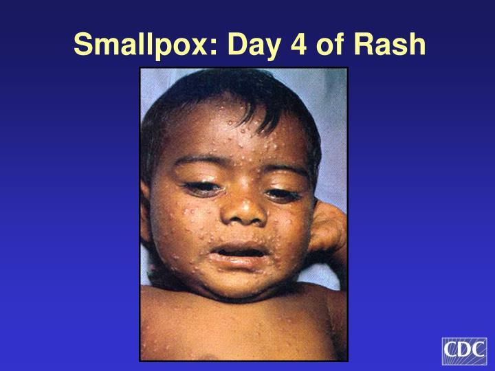 Smallpox: Day 4 of Rash