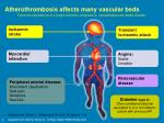 atherothrombosis affects many vascular beds