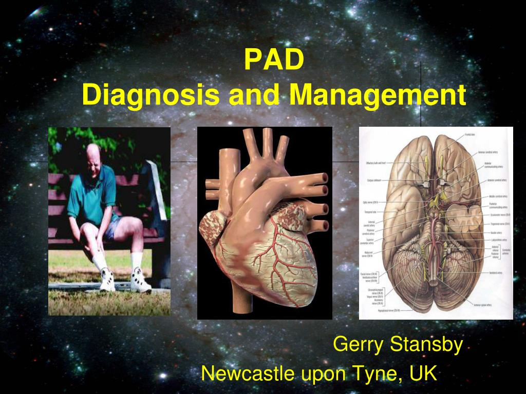 pad diagnosis and management l.