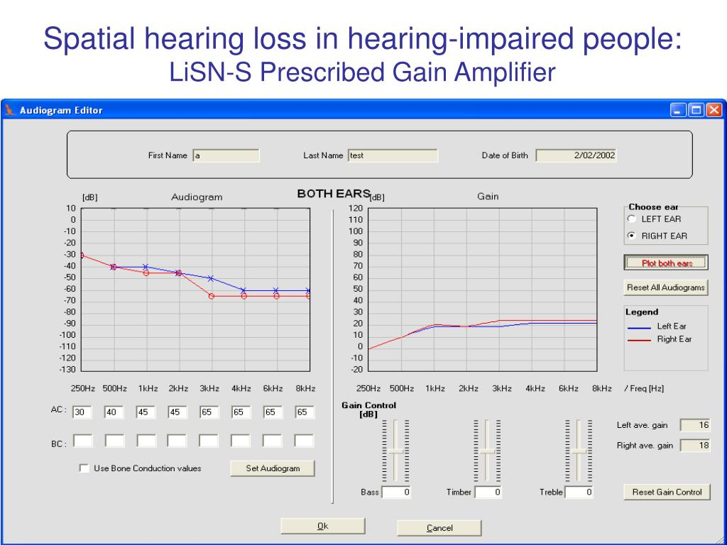 Spatial hearing loss in hearing-impaired people: