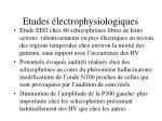 etudes lectrophysiologiques31