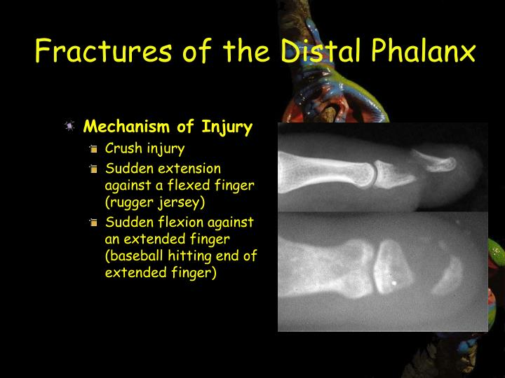 Fractures of the Distal Phalanx