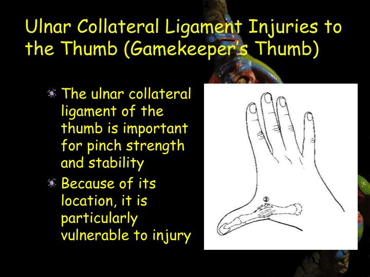 Ulnar Collateral Ligament Injuries to the Thumb (Gamekeeper's Thumb)