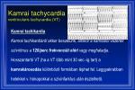 kamrai tachycardia ventricularis tachycardia vt