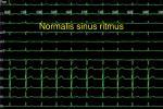 normal is sinus ritmus