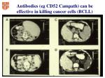 antibodies eg cd52 campath can be effective in killing cancer cells bcll