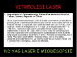 vitreolisi laser23