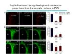 leptin treatment during development can rescue projections from the arcuate nucleus to pvn