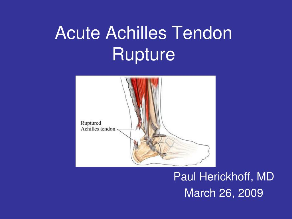 acute achilles tendon rupture l.