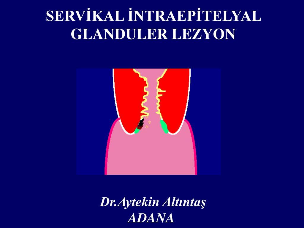 serv kal ntraep telyal glanduler lezyon l.