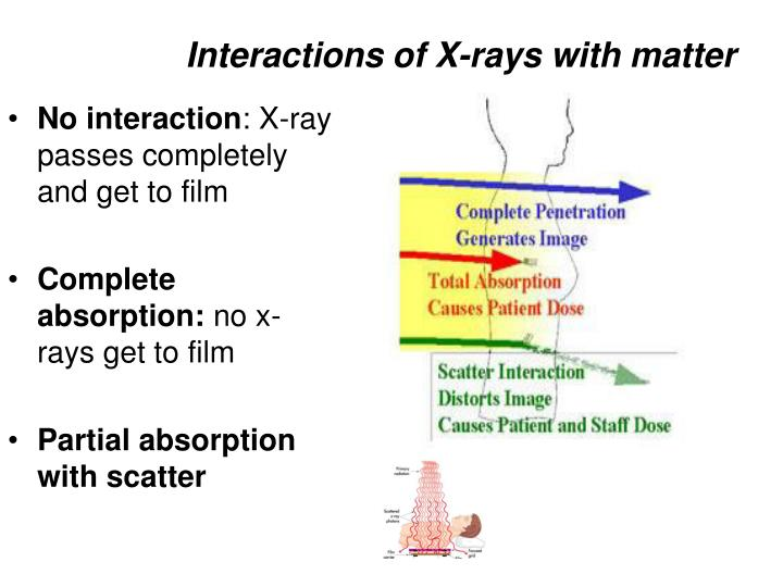 x ray interaction with matter essay The center for x-ray optics x-ray interactions with matter calculator.