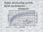 rapid decelerating growth head circumference