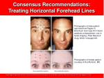 consensus recommendations treating horizontal forehead lines16