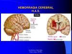 hemorragia cerebral h a s18