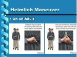 heimlich maneuver5