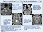 enfermedad de beh et esclerosis m ltiple em