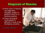 diagnosis of measles