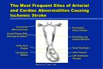 the most frequent sites of arterial and cardiac abnormalities causing ischemic stroke