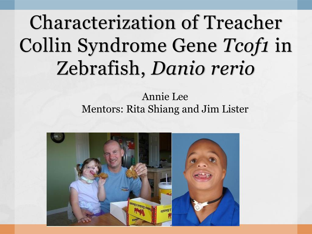 characterization of treacher collin syndrome gene tcof1 in zebrafish danio rerio l.