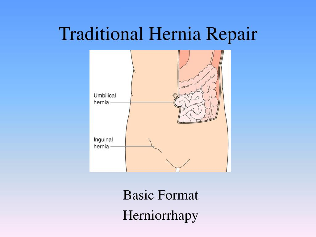 traditional hernia repair l.