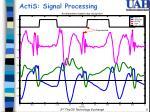actis signal processing