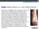 right sided failure vs left sided failure