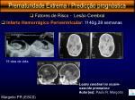 prematuridade extrema predic o progn stica13
