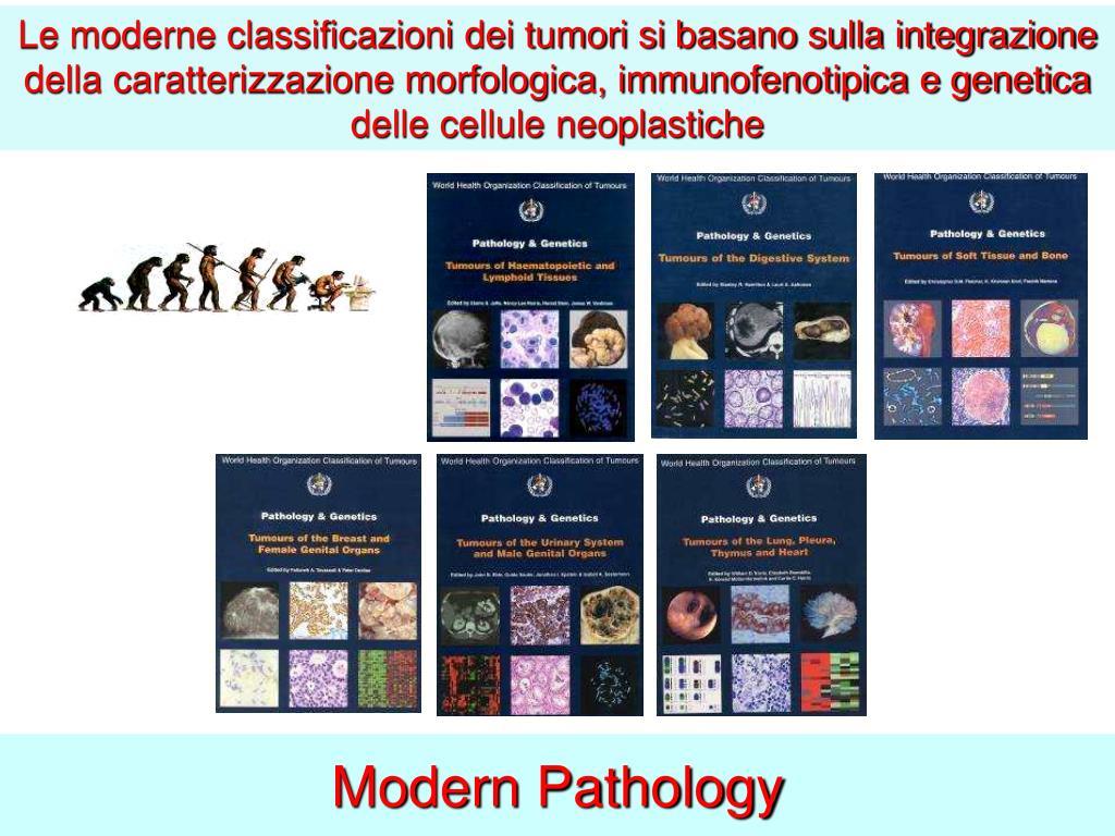 Le moderne classificazioni dei tumori si basano sulla integrazione della caratterizzazione morfologica, immunofenotipica e genetica delle cellule neoplastiche