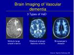 brain imaging of vascular dementia
