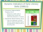 dynamic indicators of early literacy skills dibels30
